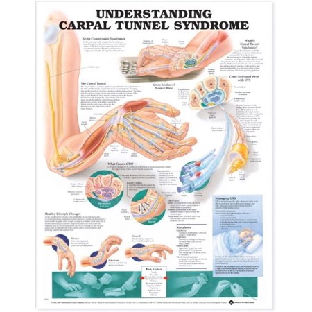 Understanding Carpal Tunnel Syndrome Anatomical (Understanding Carpal Tunnel)