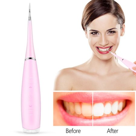 Portable Electric Oral Irrigator Teeth Cleaning Dental Irrigation Calculus  Removal Tartar Clean, Electric Oral Irrigator, Dental Irrigation