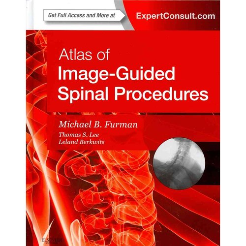 Atlas of Image-Guided Spinal Procedures: Expert Consult