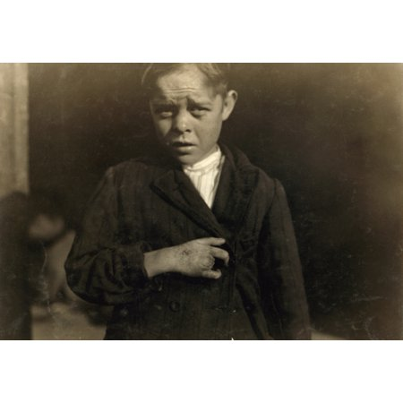 Hine Child Labor 1912 Na Young Cotton Mill Worker Injured By A Piece Of Machinery That Fell On His Foot Causing Him To Land On The Spinning Machine Which Crushed And Tore Out His Two Middle Fingers Th