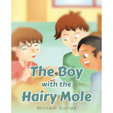The Boy with the Hairy Mole - Hairy Face Mole