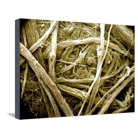 - Dense Connective Tissue, Irregular, with Collagen Fibers Stretched Canvas Print Wall Art By Richard Kessel