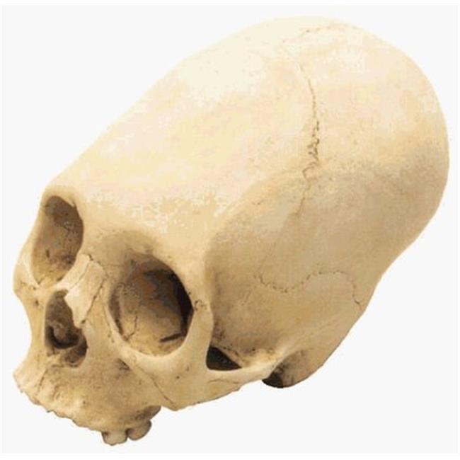 skullduggery 0203 Annular Deformation Cranium by Skullduggery