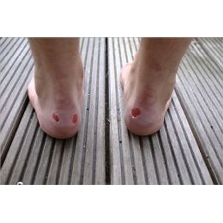 How To Get Rid of Blisters - eBook (Best Way To Get Rid Of Blisters On Feet)