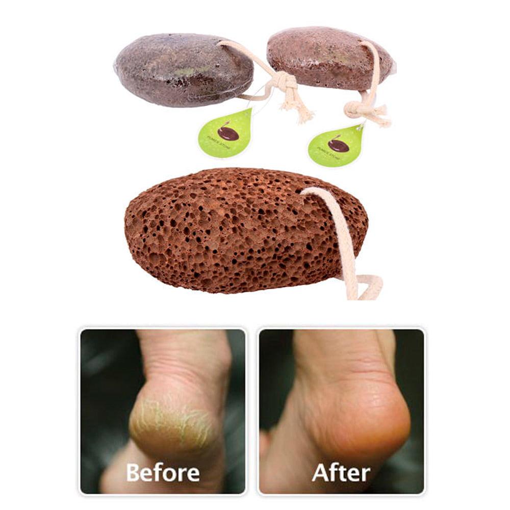2 Volcanic Lava Pumice Stone Foot Massage Scrub Exfoliate Pedicure Grinding New