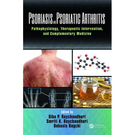 Psoriasis and Psoriatic Arthritis : Pathophysiology, Therapeutic Intervention, and Complementary (Best Diet For Psoriatic Arthritis)
