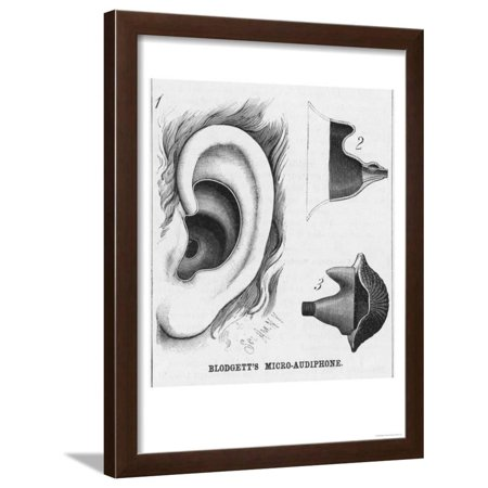 Diagrams to Show Blodgett's Micro-Audiphone Hearing Aid and How It is Inserted into the Ear Framed Print Wall