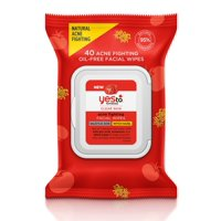 Yes To Tomatoes Acne Fighting Facial Wipes with Witch Hazel & Salicylic Acid, 40 Ct