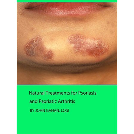 Natural Treatments for Psoriasis and Psoriatic Arthritis - (Best Diet For Psoriatic Arthritis)