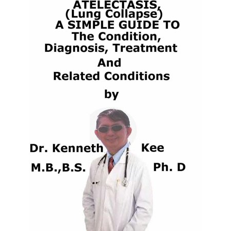 Atelectasis, (Lung Collapse) A Simple Guide To The Condition, Diagnosis, Treatment And Related Diseases - (Collapsed Lung Or Incomplete Expansion Of Lung)