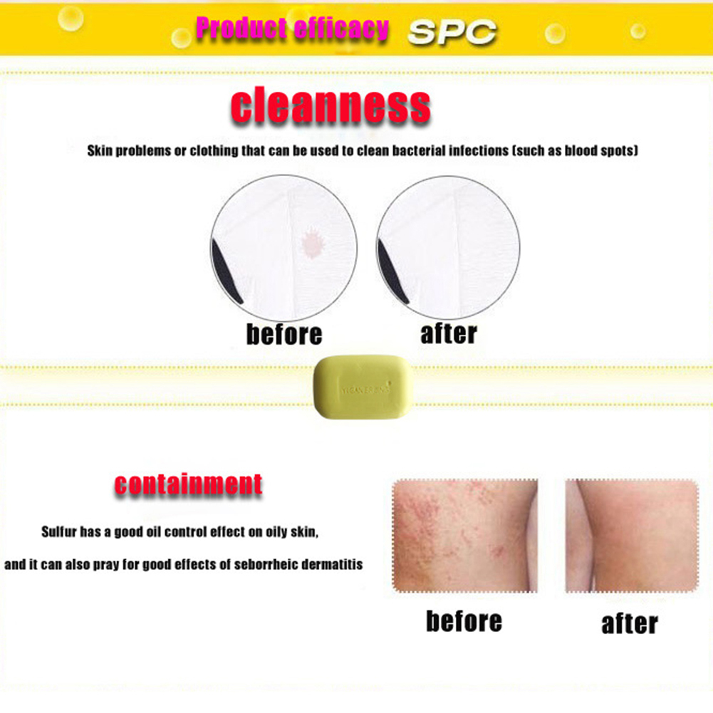 Deep Cleaning Blackhead Remover Face Skin Body Care Anti Bacterial