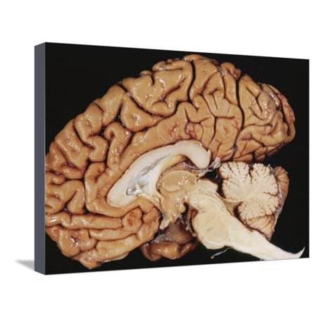 Human Brain Sagittal Section Stretched Canvas Print Wall Art By Fred Hossler (Sagittal Section Brain)