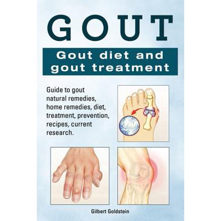 Gout. Gout Diet and Gout Treatment. Guide to Gout Natural Remedies, Home Remedies, Diet, Treatment, Prevention, Recipes, Current