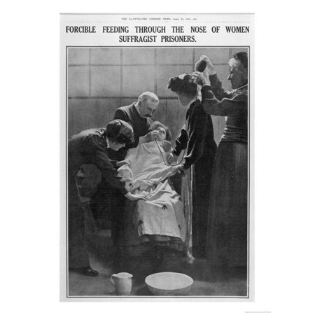 Forcible Feeding Through the Nose of Women Suffragist Prisoners Print Wall