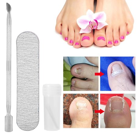 VBESTLIFE Toenail Correction Tool,3Pcs Toenail Paronychia Correction Recover Ingrown Toe Nail Fixer Corrector Pedicure
