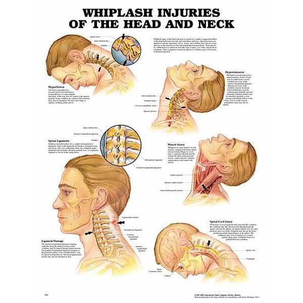 Whiplash Injuries Of Head & Neck Chart