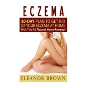 Eczema : 30-Day Plan to Get Rid of Your Eczema at Home with This All Natural Home-Remedy!