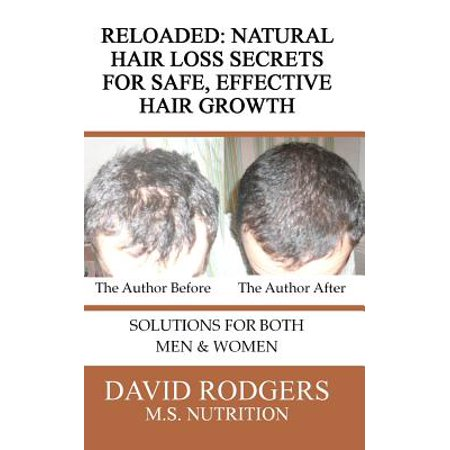 Reloaded : Natural Hair Loss Secrets for Safe, Effective Hair (Best Turret Reloading Press)