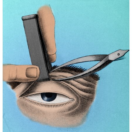Surgery to Correct Lazy Eyelid 1830 Poster Print by Science