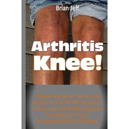 Arthritis Knee      Discover The Secret Tips For Knee Arthritis Pain Relief With The Special Arthritis Diet And Arthritis Exercises Tha