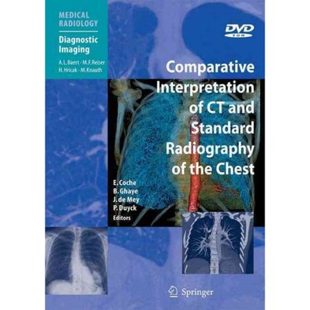 Comparative Interpretation of CT and Standard Radiography of the Chest by