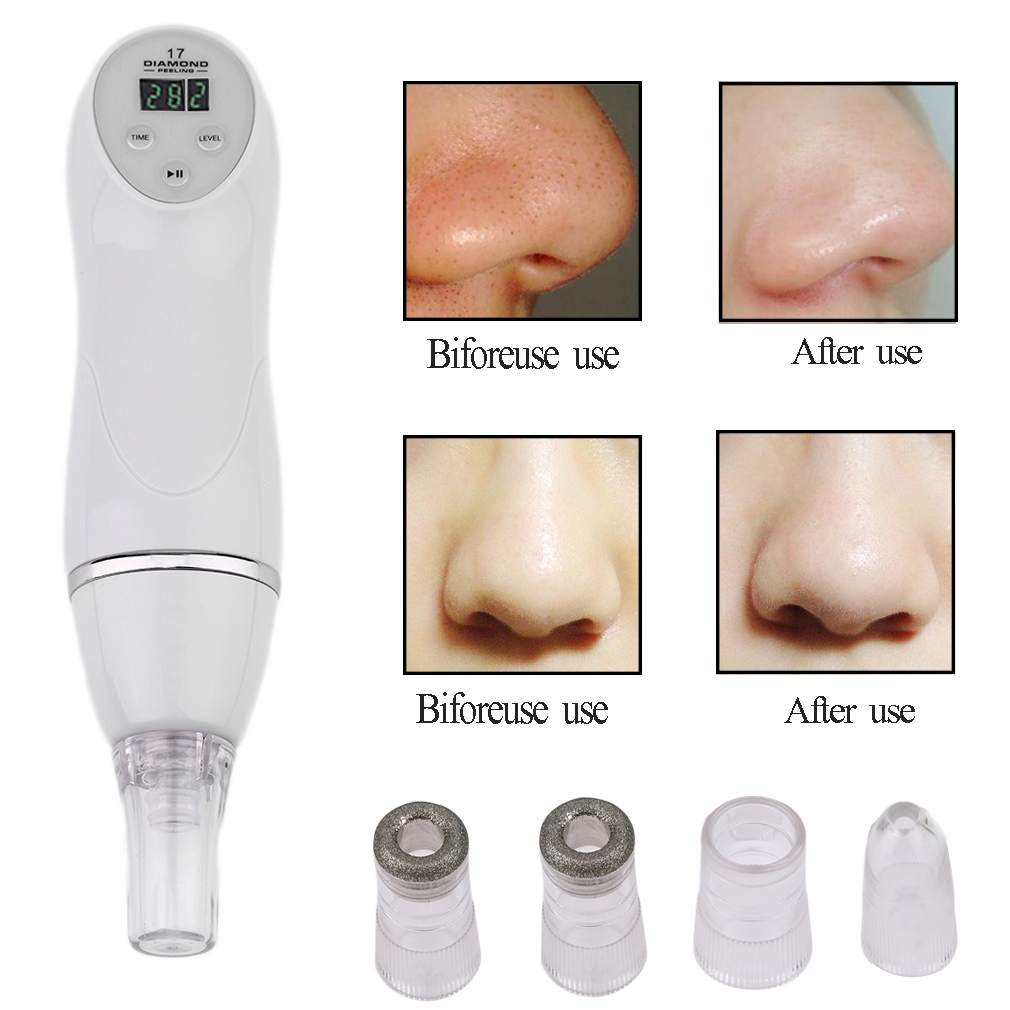 Microdermabrasion Kit,Portable Digital Diamond Microderma...
