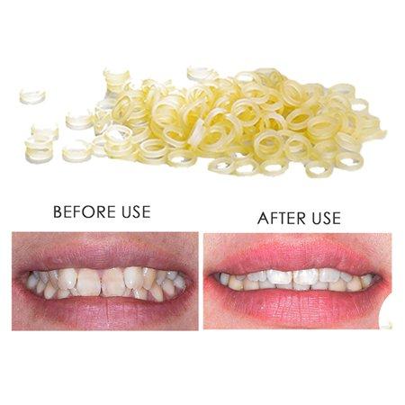 100 pcs Dental Rubber Bands Orthodontic Elastics Braces Teeth (Gap Between Two Front Teeth After Braces)