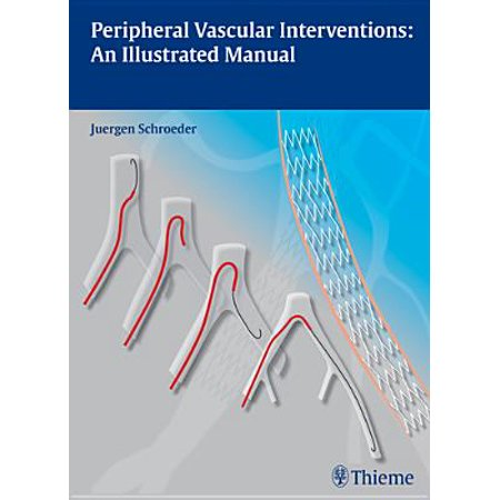 Peripheral Vascular Interventions : An Illustrated Manual