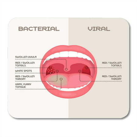 SIDONKU Bacteria Anatomy of Throat Bacterial and Viral Infection Tonsils Inflammation Angina Disease Mousepad Mouse Pad Mouse Mat 9x10