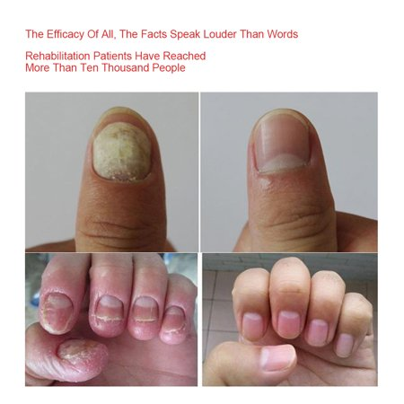 Garosa Herbal Foot Nail Cream, Protector Skin Care Cream