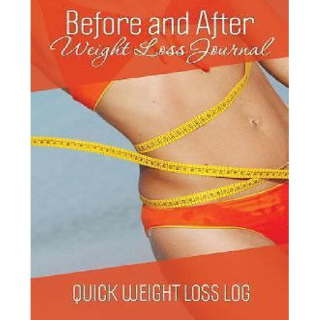 Before and After Weight Loss Journal: Quick Weight Loss