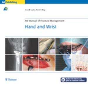 AO Manual of Fracture Management: Hand & Wrist - eBook