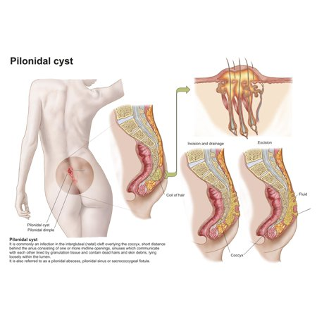 Medical Ilustration Of A Pilonidal Cyst Near The Natal Cleft Of The