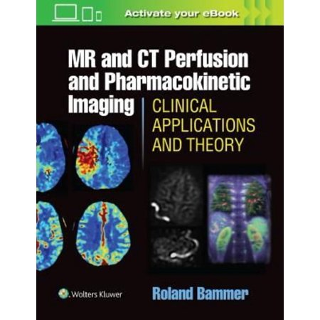 Mr And Ct Perfusion And Pharmacokinetic Imaging  Clinical Applications And Theoretical Principles