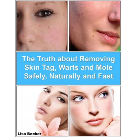 The Truth About Removing Skin Tag, Warts and Mole Safely, Naturally and Fast -