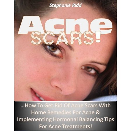 Acne Scars! …How to Get Rid of Acne Scars with Home Remedies for Acne & Implementing Hormonal Balancing Tips for Acne Treatments! -