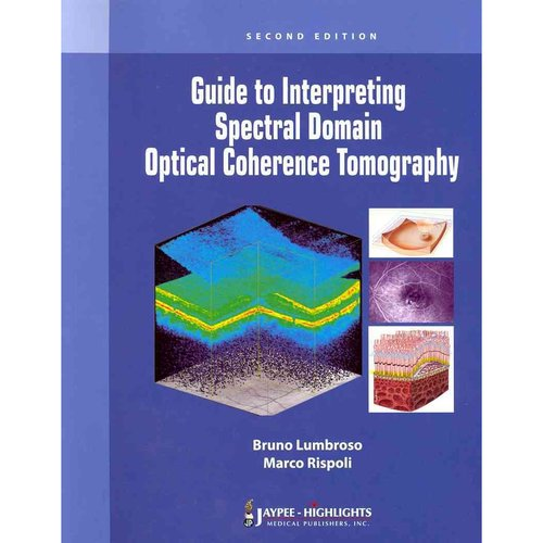 spectral domain optical coherence tomography thesis