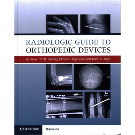 Radiologic Guide To Orthopedic Devices