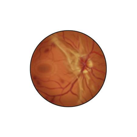 Retina with Advanced Diabetic Retinopathy Print Wall - Advanced Diuretic