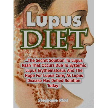 Lupus Diet: The Secret Solution To Lupus Rash That Occurs Due To Systemic Lupus Erythematosus And The Hope For Lupus Cure, As Lupus Disease Has Defied Solution Today! -