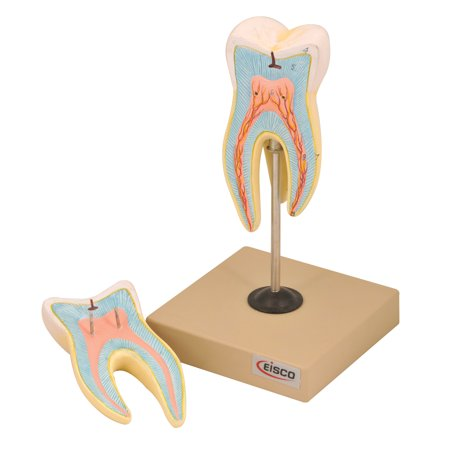 Eisco Labs Upper Triple Root Molar with Caries Model, Enlarged 15 Times, 2 - Triple Root Molar