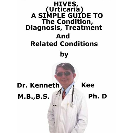 Hives, (Urticaria) A Simple Guide To The Condition, Diagnosis, Treatment And Related Conditions -