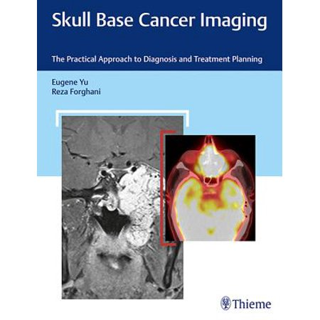 Skull Base Cancer Imaging : The Practical Approach to Diagnosis and Treatment