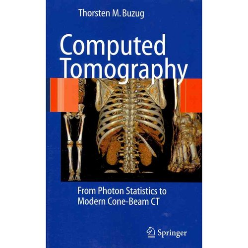 Computed Tomography: From Photon Statistics to Modern Cone-Beam Ct