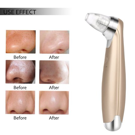 WALFRONT Electric Face Pore Cleaner Device Skin Care Lifting Cleaner Tools Portable LED Light Acne Comedone Extractor Kit with 4 Suction Heads