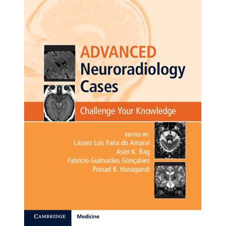 Brag Book (Advanced Neuroradiology Cases : Challenge Your)