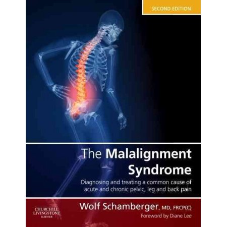 The Malalignment Syndrome  Diagnosis And Treating Of Common Cause Of Acute And Chronic Pelvic  Limb And Back Pain