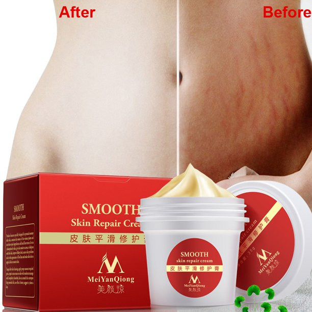 Superhomuse Smooth Skin Cream Stretch Marks Scar Removal Maternity
