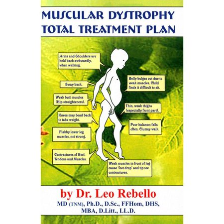 Muscular Dystrophy  Total Treatment Plan