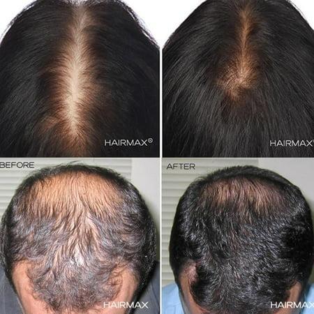 Hairmax Laser 272 Home Hair Growth Device 272 Lasers Powerflex Laser Cap Stimulate Hair Growth Reverse Thinning Regrow Denser Fuller Hair Full Scalp Hair Loss Treatment Walmart Canada